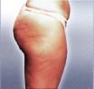 Cellulite voor endermologie